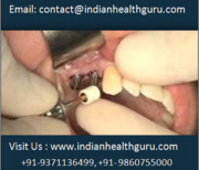 Travel to India for Best Affordable Dental Implants